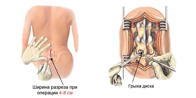 вынуждены длительное лечение синдрома оперированного позвоночника форум воротниковой
