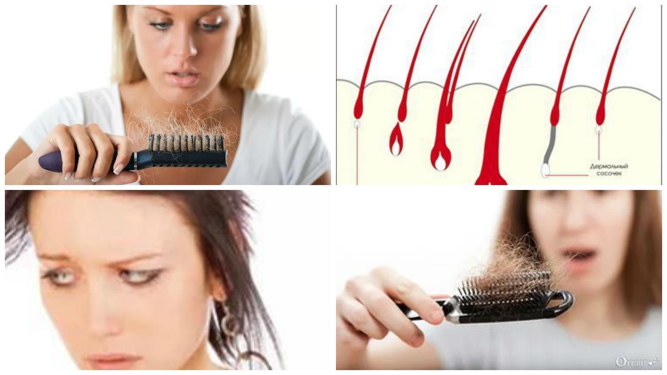 Выпадение волос у женщин: причины и лечение в домашних