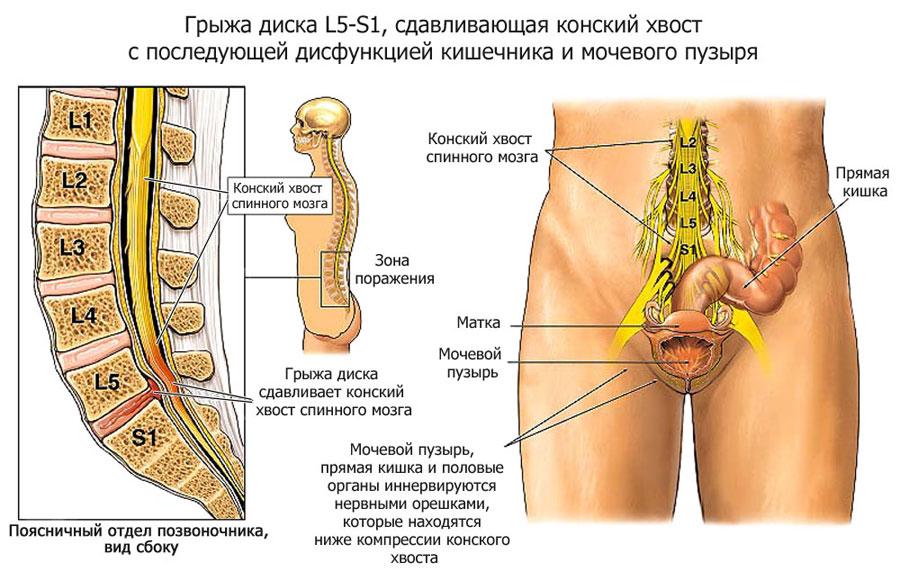Грыжа грудного отдела как лечить в домашних условиях