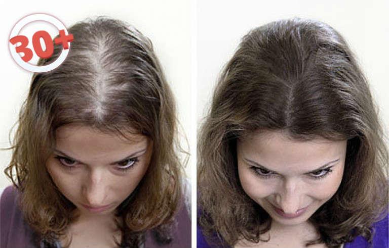 От чего выпадают волосы гормоны