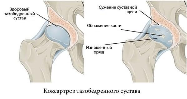 боль в тазобедренном суставе причины и лечение-коксартроз