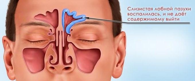 Сильная головная боль в области лба и висков что делать-воспаление