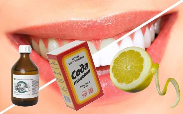 как без вреда для эмали отбелить зубы в домашних условиях