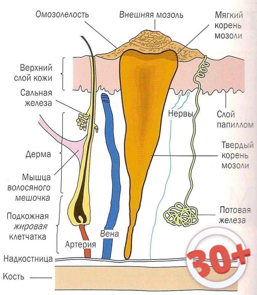 Как вылечить стержневую мозоль на мизинце