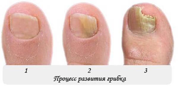 Грибок ногтей средства для лечения дешевые и эффективные-виды грибка