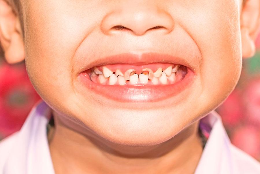 почему ребенок скрипит зубами во сне ночью-проблемы с зубами